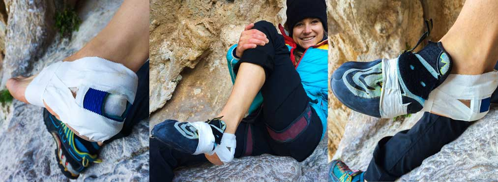 how to modify a climbing shoe bursitis